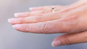 Eccema / Dermatitis