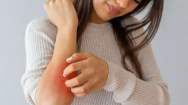 Enfermedades inflamatorias de la piel